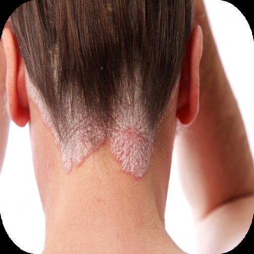 Форум лечение себореи головы