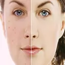 Stain removal and acne