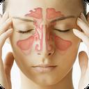 درمان گیاهی سینوزیت