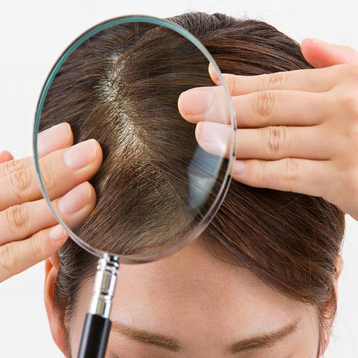 علت شوره سر و درمان قطعی خانگی