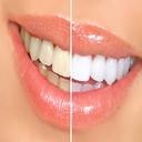 21 روش برای سفید کردن دندان
