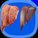 درمان و رفع جامع کبد چرب