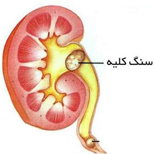 image of kidney stones