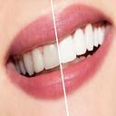مراقبتهای ویژه دندان-سفید کردن فوری