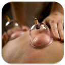Cupping and medical healing