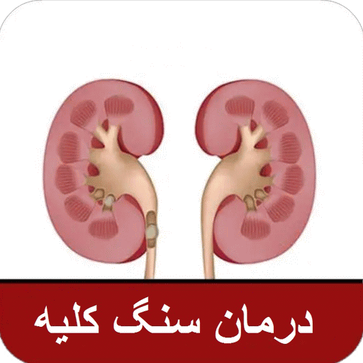 picture of kidney stones from energy drinks