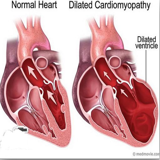 اختلالات عامل بزرگی قلب