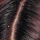 راههای درمان شوره سر