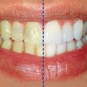 رمز داشتن دندان سفید