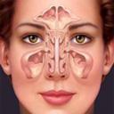 سینوزیت و درمان آن