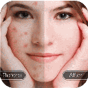 Wax face treatment removing pimples