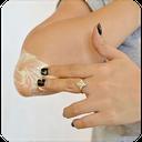 درمان سفیدی آرنج و زانو
