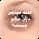 علت سیاهی دور چشم چیست؟