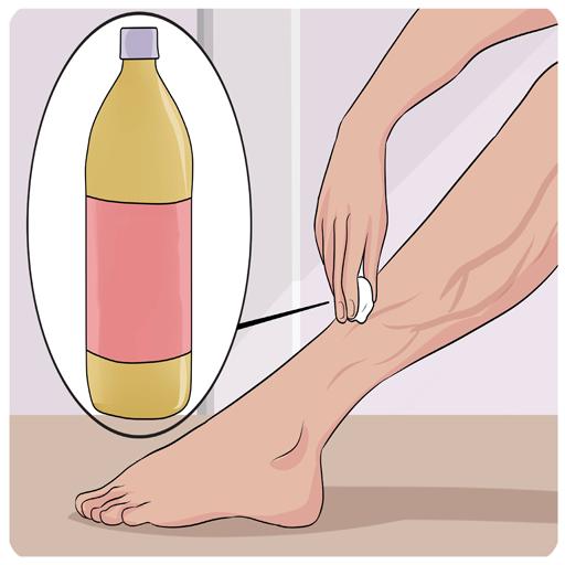 درمان خانگی واریس