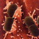 انواع عفونت و درمان آن