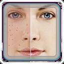 راهنمای درمان جوش صورت