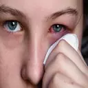 فوق تخصص چشم پزشکی