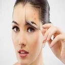 درمان جوش و لک صورت