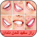 راز سفید شدن دندان