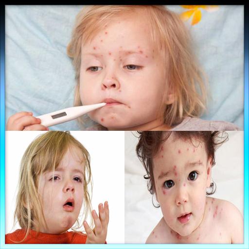 بیماری های واگیر دار کودکان