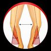 پای پرانتزی (تشخیص و اصلاح)