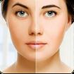 راه های سفید کردن پوست صورت