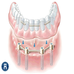 درمان های خانگی دندان درد