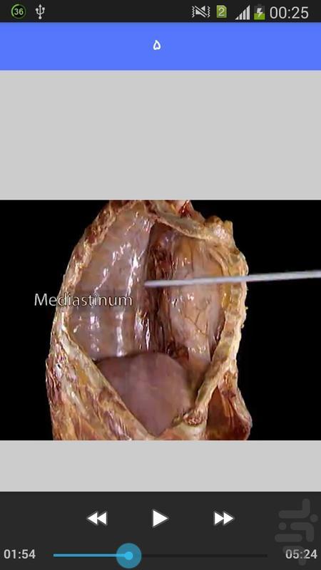 آناتومی عضلات توراکس آکلند - عکس برنامه موبایلی اندروید