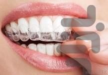 21 روش برای سفید کردن دندان - عکس برنامه موبایلی اندروید