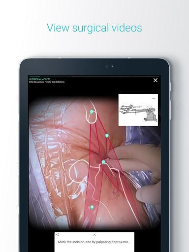 Touch Surgery: Surgical Videos - عکس برنامه موبایلی اندروید