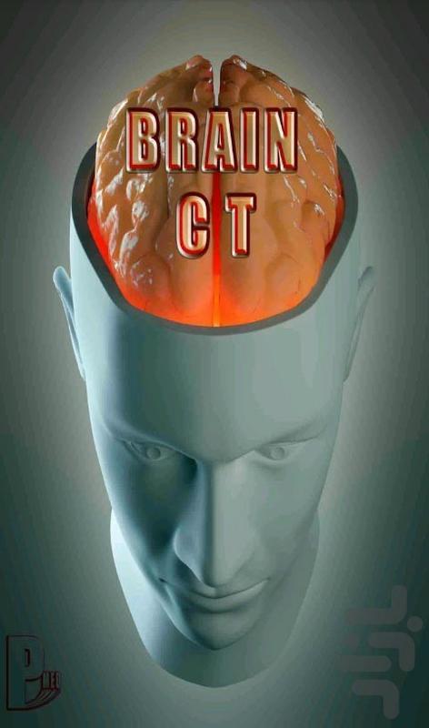 تفسیر سی تی اسکن مغز ( Brain CT ) - عکس برنامه موبایلی اندروید