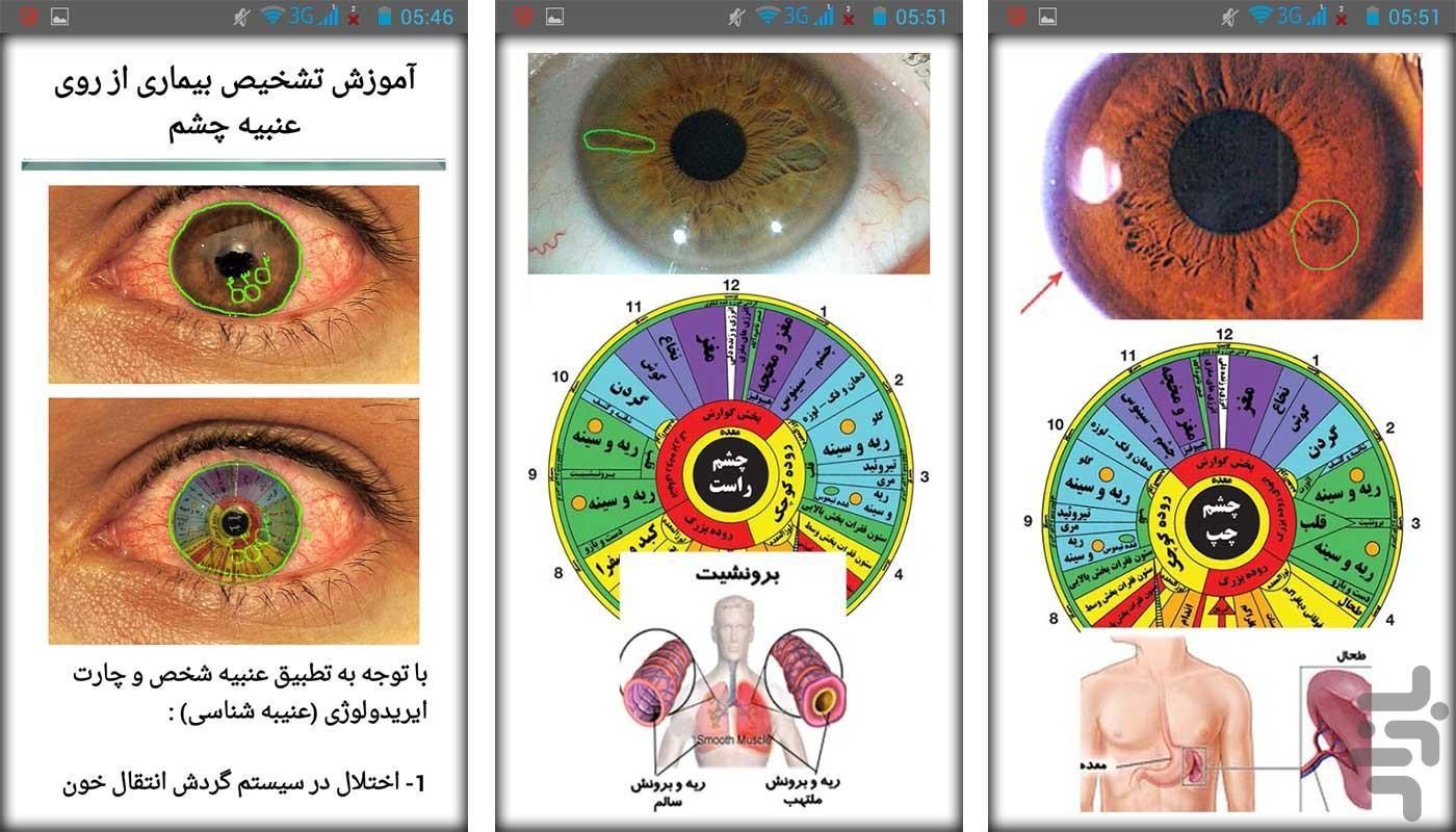 علم تشخیص بیماری از روی چشم - عکس برنامه موبایلی اندروید
